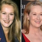 Meryl Streep before and after plastic surgery (7)