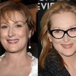 Meryl Streep before and after plastic surgery (8)