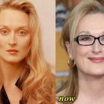 Meryl Streep before and after plastic surgery (9)