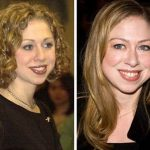 Chelsea Clinton before and after plastic surgery (11)