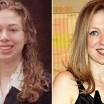 Chelsea Clinton before and after plastic surgery (13)