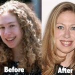 Chelsea Clinton before and after plastic surgery (15)