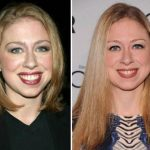 Chelsea Clinton before and after plastic surgery (17)