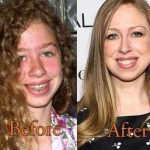 Chelsea Clinton before and after plastic surgery (19)