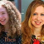 Chelsea Clinton before and after plastic surgery (20)