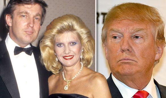 explore donald trump plastic surgery