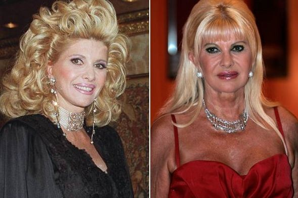 Ivana Trump before and after plastic surgery