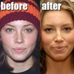Jessica Biel before and after nose job (6)