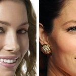 Jessica Biel before and after plastic surgery (18)