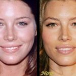 Jessica Biel before and after plastic surgery (6)