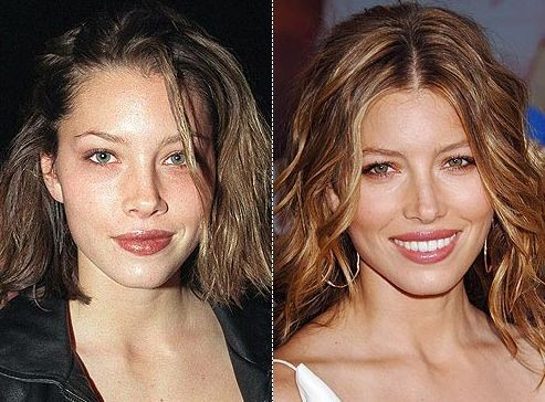 Jessica Biel before and after plastic surgery