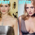 Kate Winslet after breast augmentation (28)