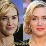 Kate Winslet before and after nose job (26)