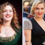 Kate Winslet before and after plastic surgery (13)