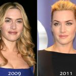 Kate Winslet before and after plastic surgery (17)