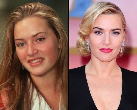 Kate Winslet before and after plastic surgery (2)