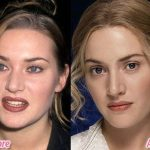 Kate Winslet before and after plastic surgery (22)
