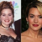 Kate Winslet before and after plastic surgery (24)