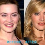 Kate Winslet before and after plastic surgery (27)