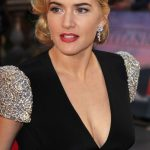 Kate Winslet plastic surgery (32)