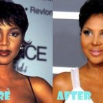 Toni Braxton before and after plastic surgery (30)
