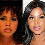 Toni Braxton before and after plastic surgery (31)