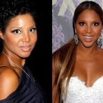 Toni Braxton before and after plastic surgery (32)