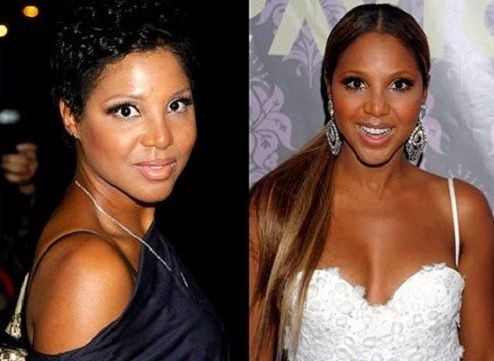 Toni Braxton Before And After Plastic Surgery 32