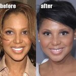 Toni Braxton before and after plastic surgery (33)