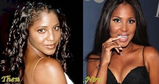 Toni Braxton before and after plastic surgery