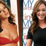 Leah Remini before and after plastic surgery (19)