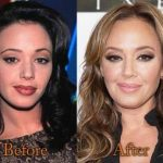 Leah Remini before and after plastic surgery (23)