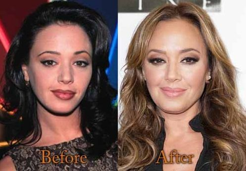 Leah Remini Before And After Plastic Surgery 23