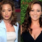 Leah Remini plastic surgery (24)