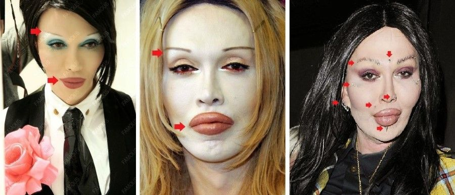 Pete Burns plastic surgery 35