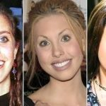 Chloe Lattanzi before and after plastic surgery 41