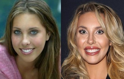 Chloe Lattanzi before and after plastic surgery