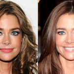 Denise Richards before and after plastic surgery 1
