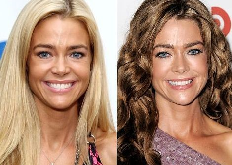 Denise Richards before and after plastic surgery