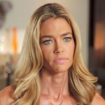 Denise Richards plastic surgery 11