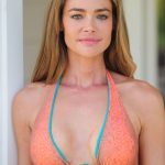 Denise Richards plastic surgery 21