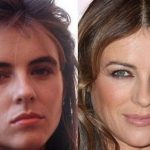 Elizabeth Hurley before and after plastic surgery 15