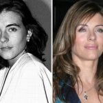 Elizabeth Hurley before and after plastic surgery 14