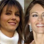 Elizabeth Hurley before and after plastic surgery 16
