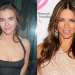 Elizabeth Hurley before and after plastic surgery 27