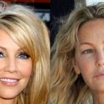 Heather Locklear before and after plastic surgery 3