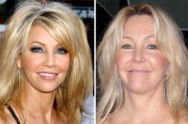 Heather Locklear before and after plastic surgery