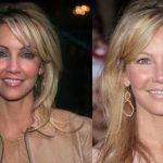 Heather Locklear before and after plastic surgery 7