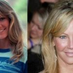 Heather Locklear before and after plastic surgery 8