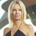 Heather Locklear plastic surgery 25